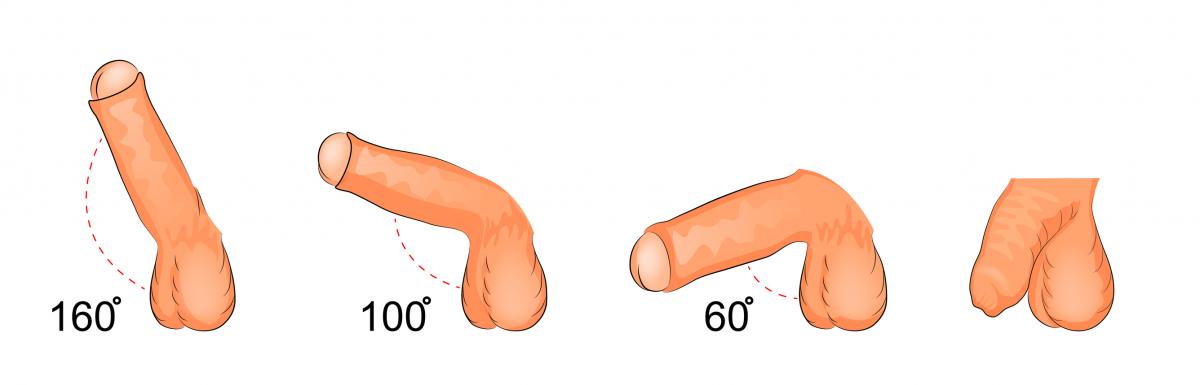 obrázky tvrdý penis